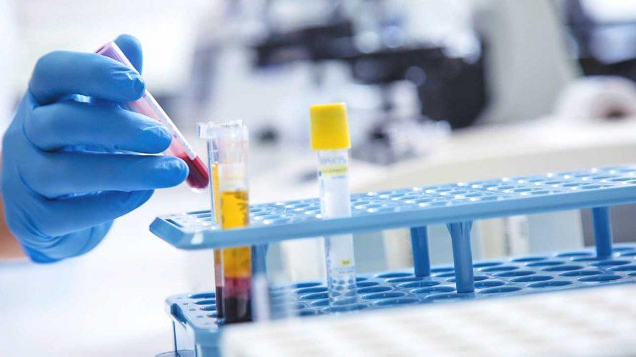 癌症支援服務相比生物製劑治療哪個好
